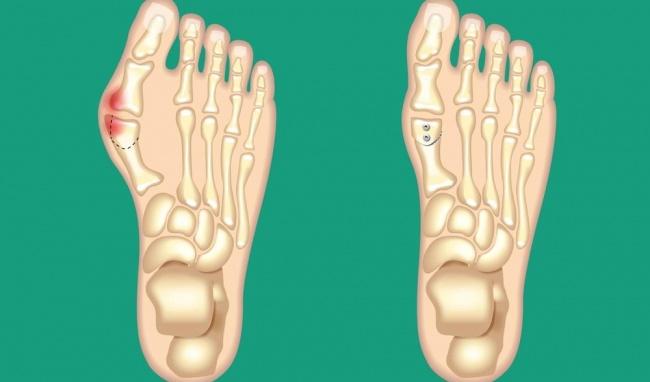 Giải đáp: Đau khớp ngón chân cái là dấu hiệu bệnh gì