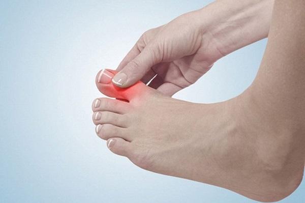 Đau khớp ngón chân cái là dấu hiệu bệnh gì