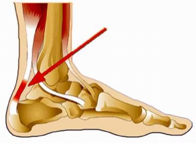 Nguyên nhân dẫn đến bệnh lý viêm bao gân cổ chân