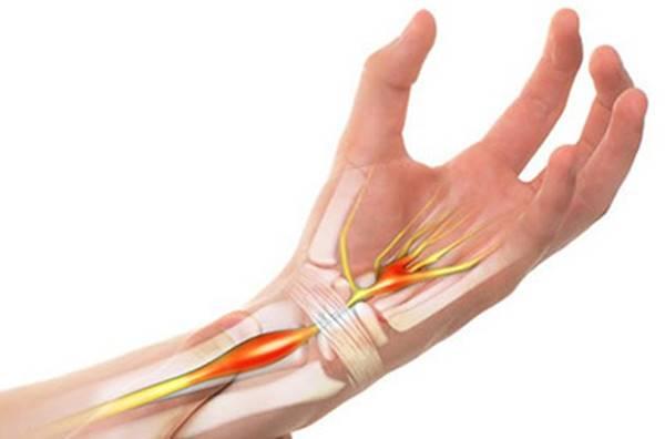 Một số nguyên nhân gây viêm khớp cổ tay